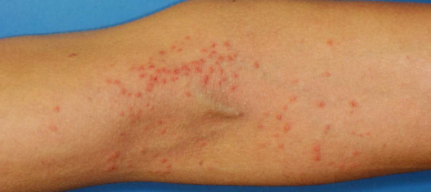 Rashes Treatment & Medication, Philadelphia | Eczema ...