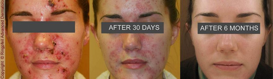 Before and After photos of Acne Treatment Process in Ringpfeil Advanced Dermatology