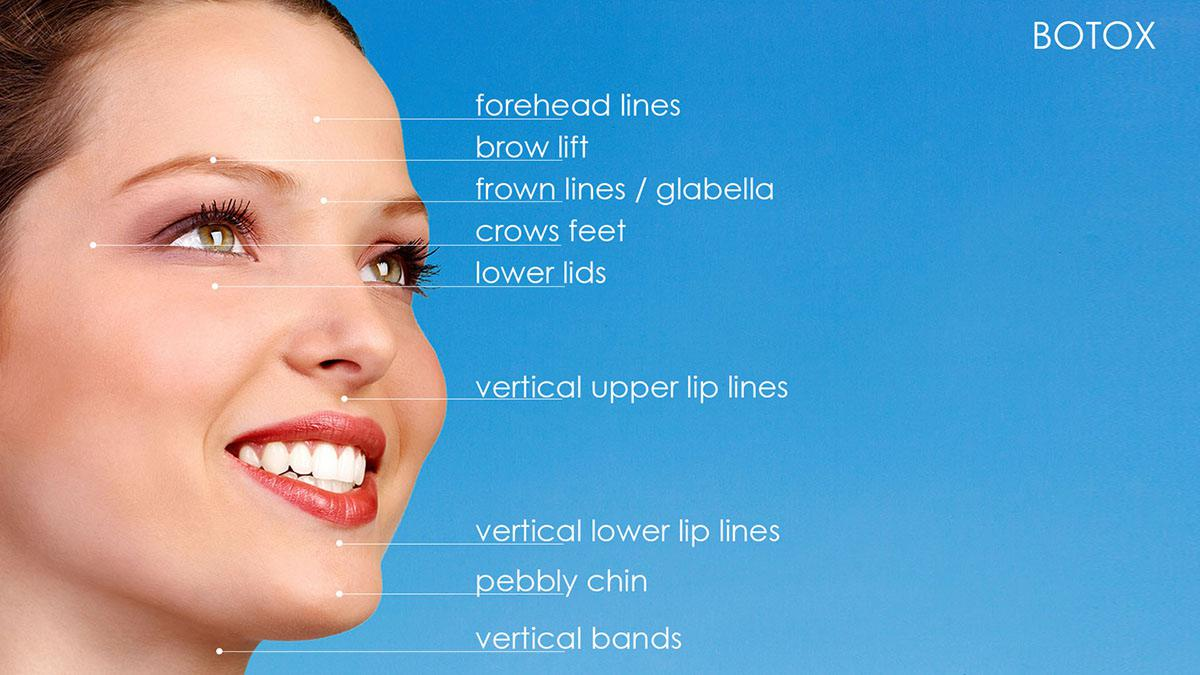 Botox hotspots for shaping of facial features, forehead lines, brow lift, frown lines/glabella, crows feet, lower lids, vertical upper lip lines, vertical lower lip lines, pebbly chin, vertical bands