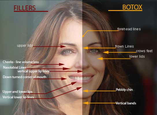 Botox Injection for Wrinkles, Philadelphia | Best Botox