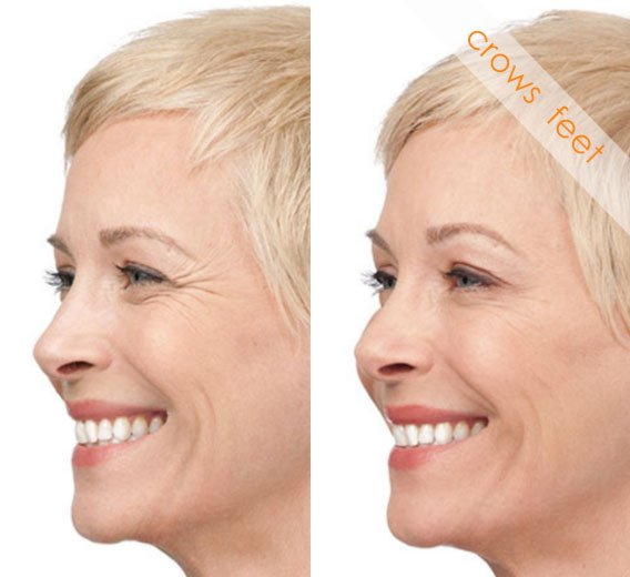 Before and After Crowsfeet Treatment, smiling female face, left side view