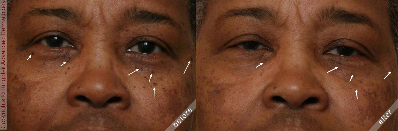 Before and After Dermatosis Treatment, patient face