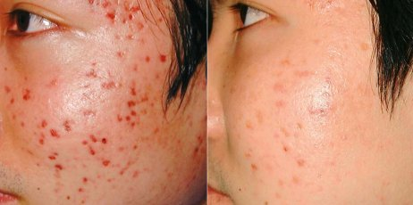 Before and After Acne treatment - Asian person, patient face, left side view