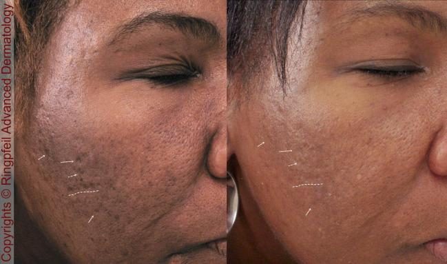 Before and After Scar treatment for African American patient, female face