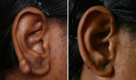 Before and After Scar treatment for African American patient, female ears, patient 2