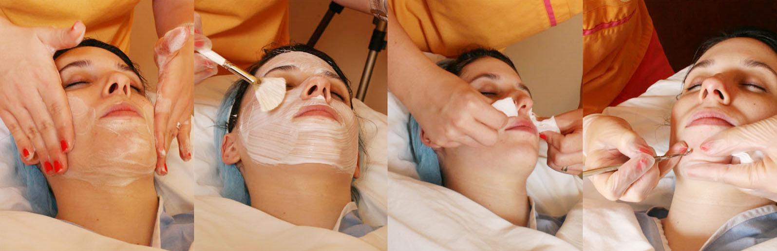 Acne Facial Pores Extraction Philadelphia Medical Facials Pa