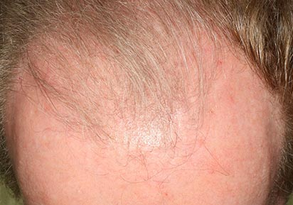 Hair Loss Treatment Androgenic Alopecia, male forehead, patient 2