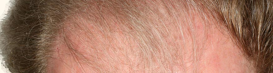Hair Loss Treatment Androgenic Alopecia, male forehead, patient 1