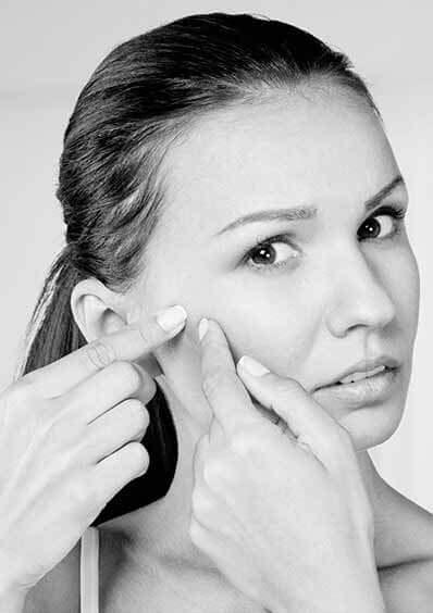 home popular acne treatment