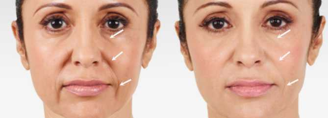Before and After Juvederm Treatment, female face