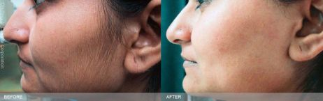 facial hair removal for african american women jpg 1500x1000