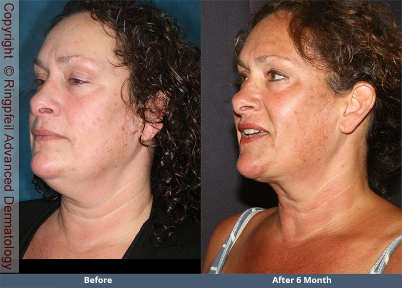 Before and  6 mounths After liposuction treatments, female face, patient 2 (left side, oblique view)