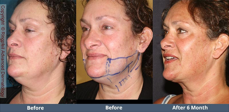 Before and  6 mounths After liposuction treatments, female face, patient 2 (oblique view)