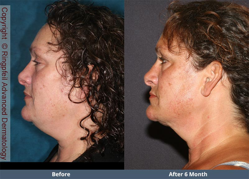 Before and  6 mounths After liposuction treatments, female face, patient 2