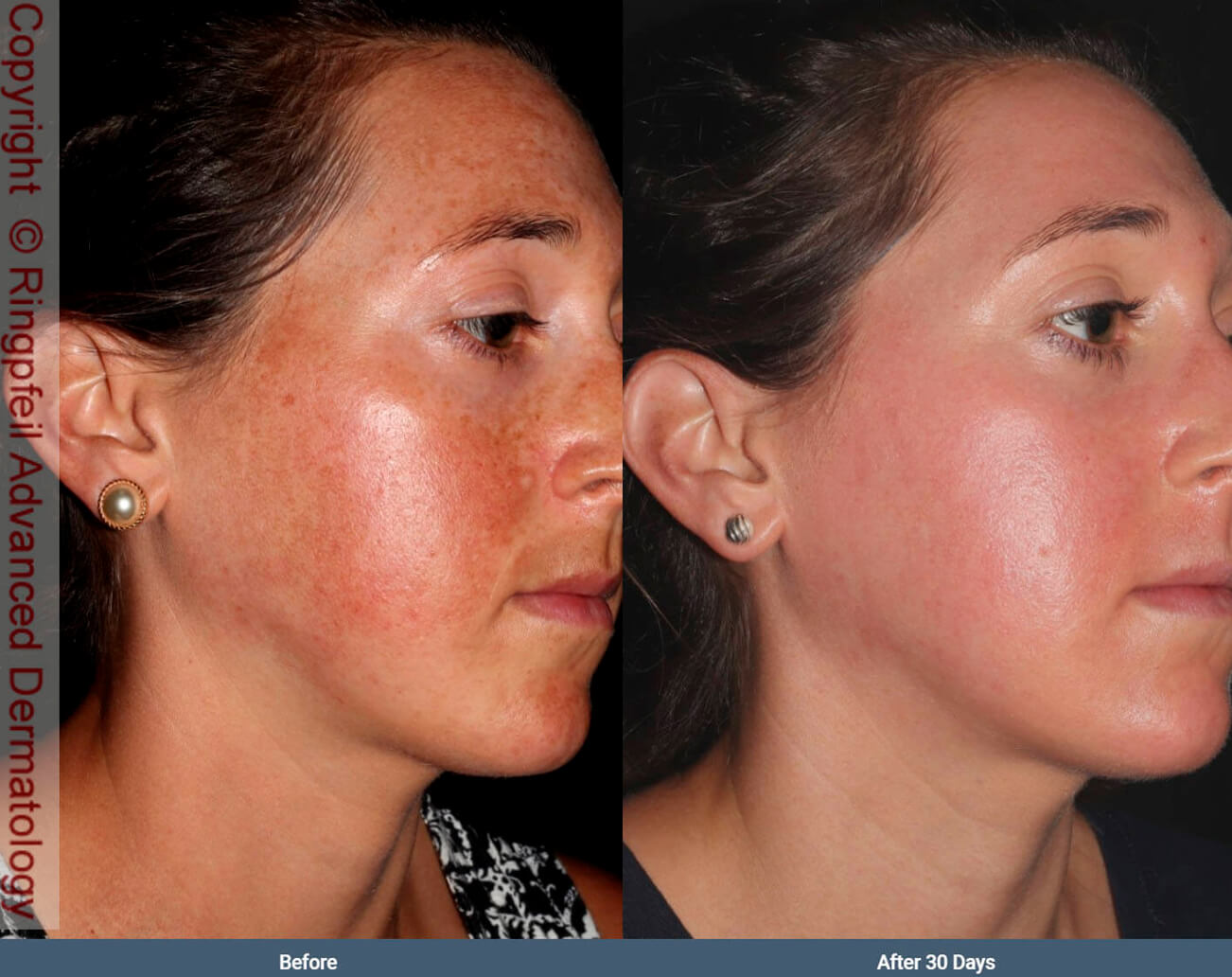 Melasma- before and after treatment