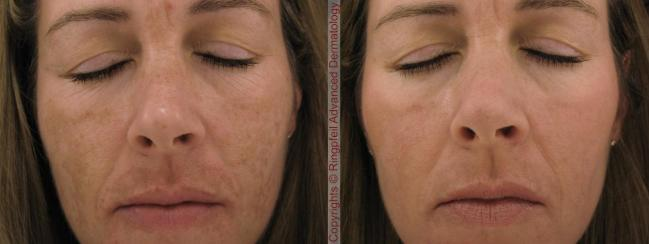 Melasma Hyperpigmentation Treatment, PA