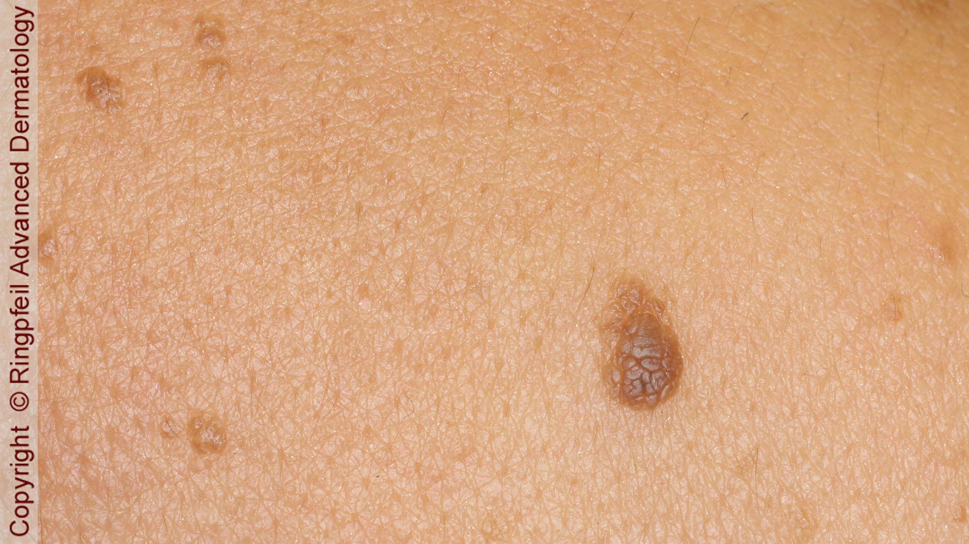 removal of atypical moles