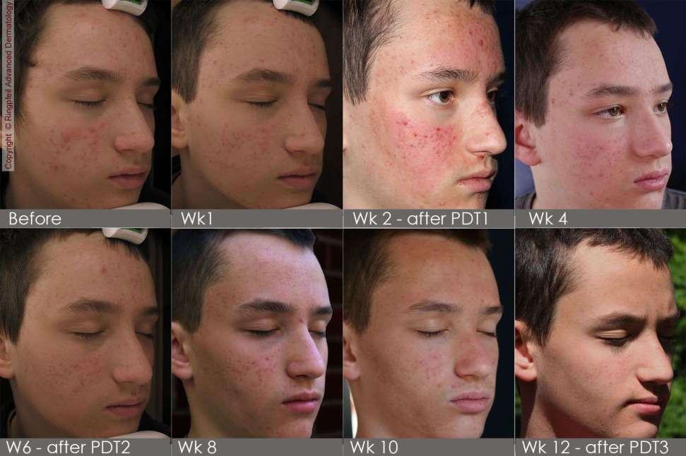 Male patient photodynamic therapy for acne treatment - before and after 12 weeks photos