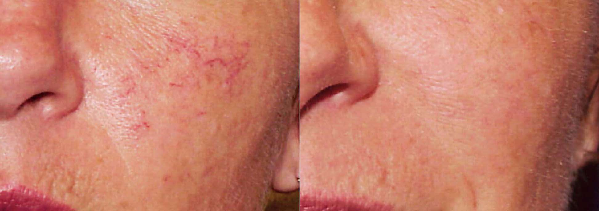 Rosacea - before and after treatment