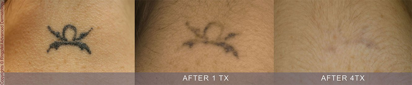 picosure laser tattoo removal remove tattoo philadelphia pa