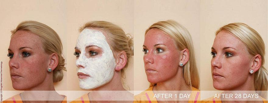 Before and After Chemical Peels treatment in Ringpfeil Advanced Dermatology