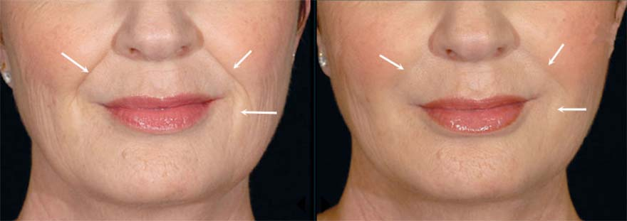 Before and After Restylane Treatment, female face (front view)