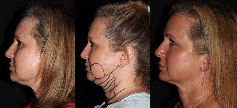 Before and  After liposuction treatments, female face, patient 3