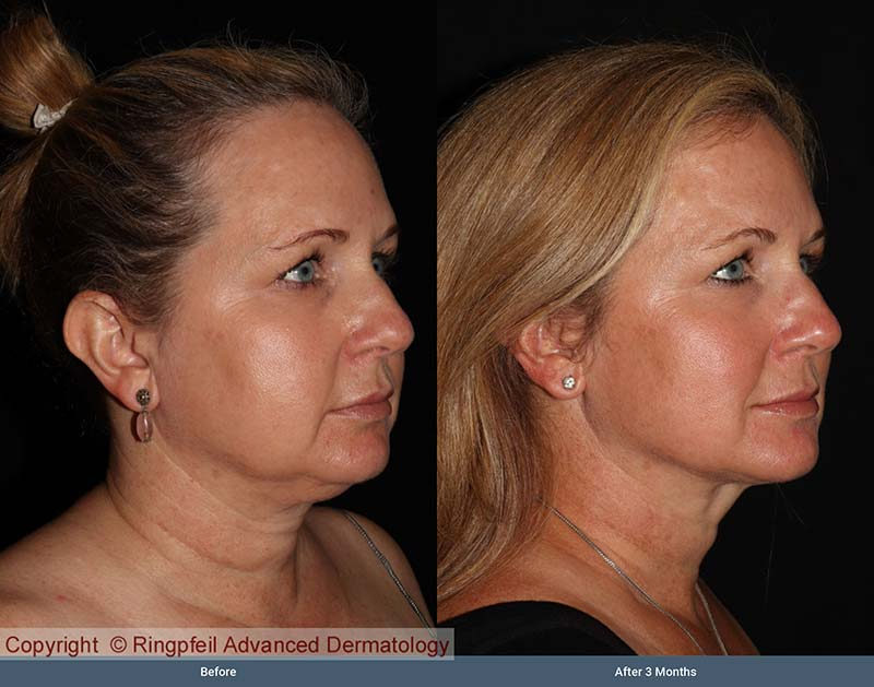 Before and  3 mounths After liposuction treatments, female face, patient 1