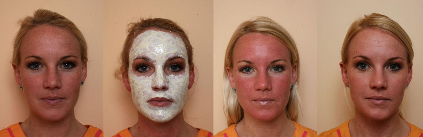 Before and After brown spots treatments photos, female face, front view