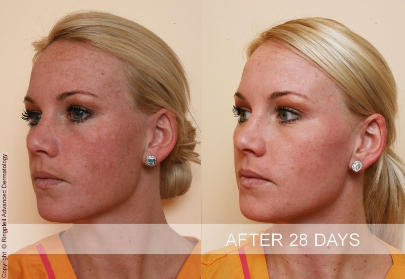 Before and After 28 days, brown spots treatments photos, female face, oblique view