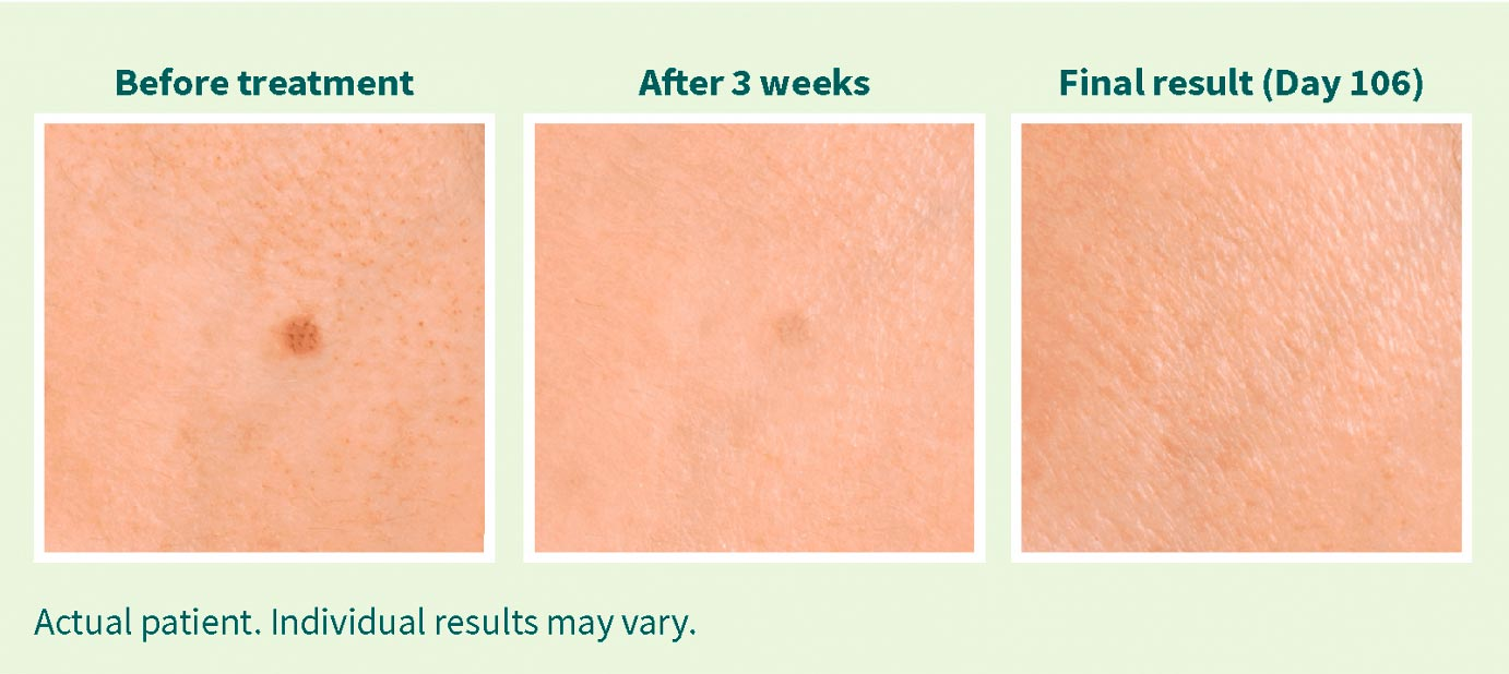 liver spots treatments eskata