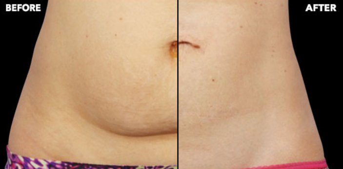 Coolsculpting - Before and After Treatment photos, female tummy tuck