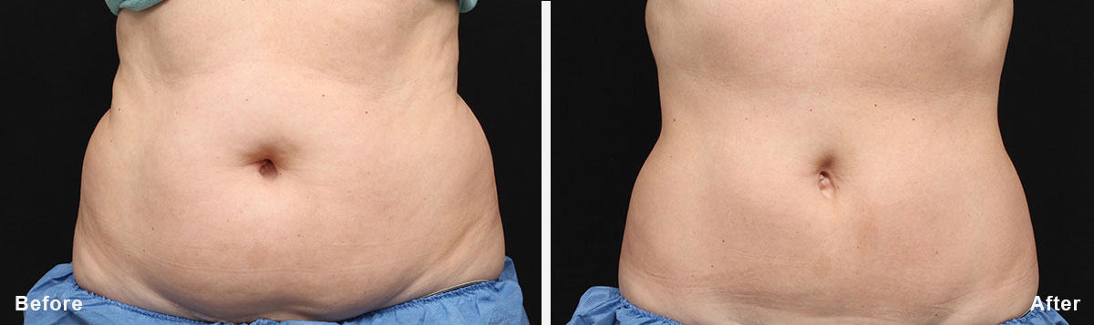 Coolsculpting - Before and After Treatment photos,  tummy tuck - female patint 2