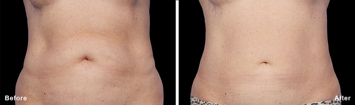 Coolsculpting - Before and After Treatment photos,  tummy tuck - female patint 4