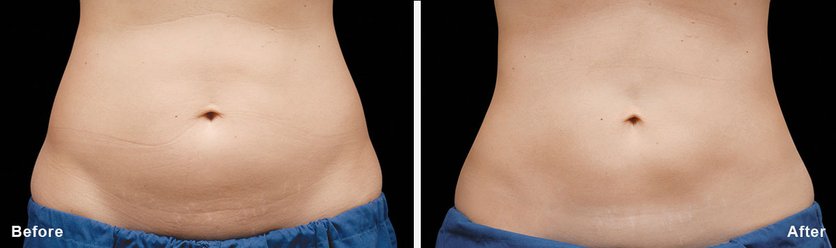 Coolsculpting - Before and After Treatment photos,  tummy tuck - female patint 5