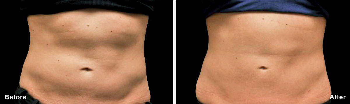 Coolsculpting - Before and After Treatment photos,  tummy tuck - female patint 6