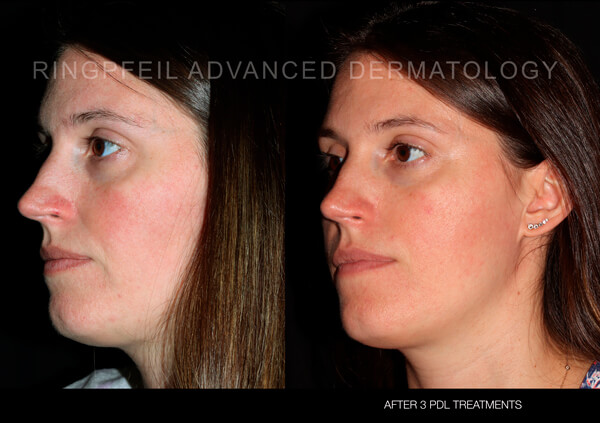 Rosacea - before and after treatment, female face, cheek -  patient 2